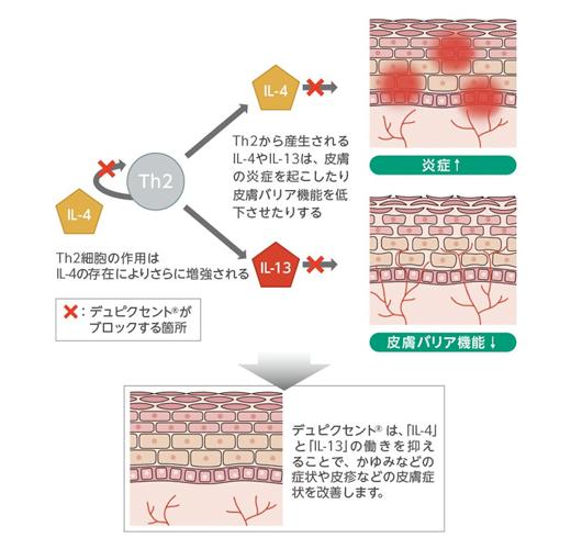 デュピクセントイメージ図